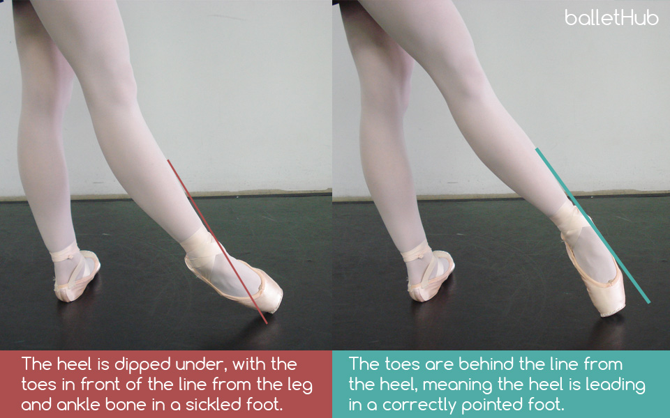 sickled foot in ballet tendu front