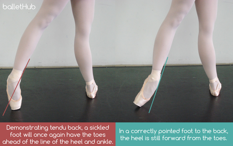 a24928834dffc Sickling in Ballet: What, Why and How to Avoid It - BalletHub